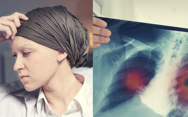 Cô gái 28 tuổi bị ung thư phổi giai đoạn 4, nguyên nhân chính là thứ mà toàn nhân loại đang phải đối diện, tiếp xúc hàng ngày