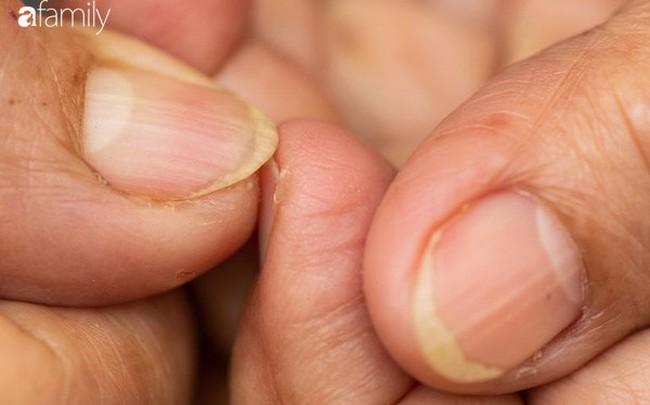 Móng tay vàng là dấu hiệu cảnh báo những vấn đề sức khỏe nghiêm trọng này