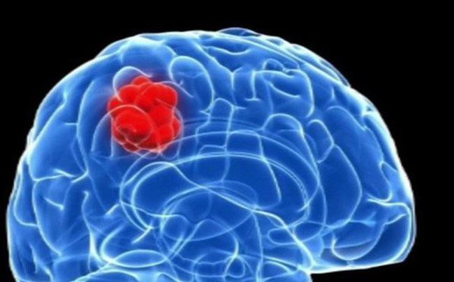 Chuyên gia bệnh viện K Trung ương chỉ ra 8 bất thường có thể là dấu hiệu của u não