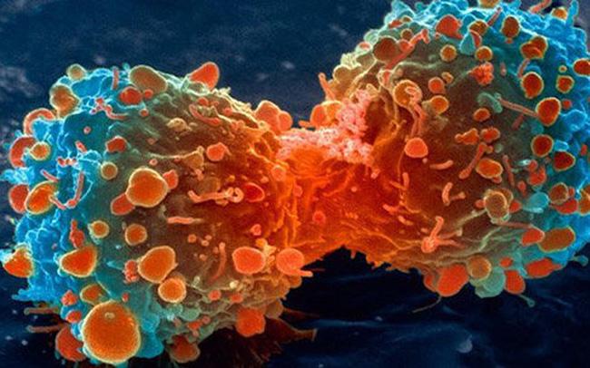 Những người không dễ mắc ung thư luôn có 6 điểm chung này: Chị em cần đọc ngay để học hỏi