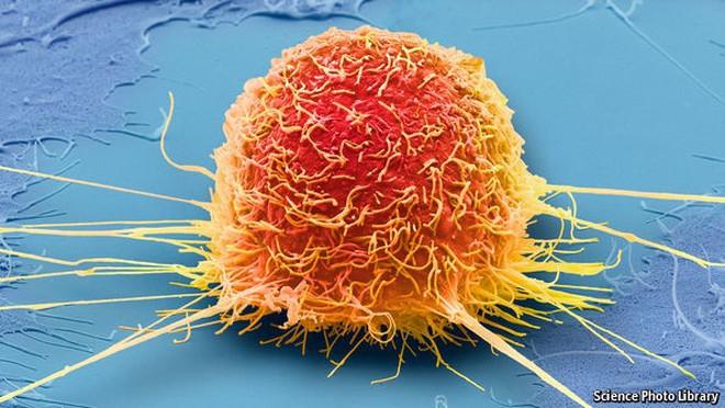 Cô lập thế bào ung thư