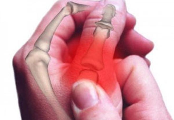 """Thói quen bẻ khớp ngón tay kêu """"rắc rắc"""": Tưởng toàn hại hóa ra cũng có lợi"""
