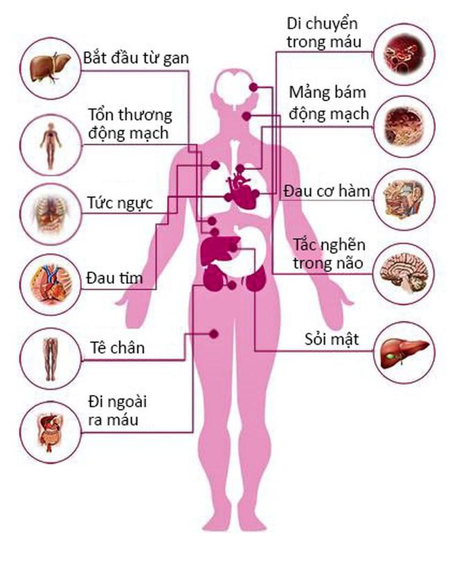 Cholesterol cao ảnh hưởng đến sức khỏe như thế nào?