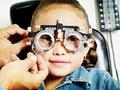 Cận thị 20 đi ốp do di truyền có nhiều ở Việt Nam