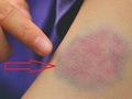 Thấy vết bầm tím trên da mãi không khỏi, hãy cảnh giác với những căn bệnh sau