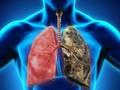 Vì sao số người mắc ung thư phổi ngày càng tăng? Chuyên gia cảnh báo nguyên nhân là thứ chúng ta đang tiếp xúc hàng ngày