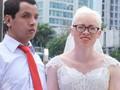 Chuyện tình cảm động phía sau đám cưới của chú rể khiếm thị và cô dâu đột biến gen có mái tóc bạc trắng ở Hà Nội