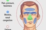 5 chứng đau đầu phổ biến nhất và những phương pháp giảm đau hiệu quả