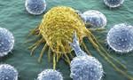 Mỹ công bố liệu pháp mới giúp điều trị ung thư