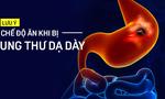 Ung thư dạ dày: Những lời khuyên cần biết để không khiến bệnh trầm trọng hơn