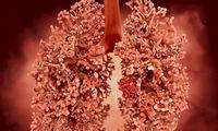 8 dấu hiệu đầu tiên của ung thư phổi thường bị bỏ qua: Biết sớm để phòng nguy hiểm