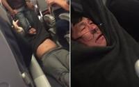 Khoảnh khắc trước khi ông David Dao bị kéo khỏi máy bay