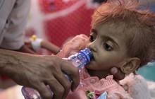 Nạn đói thế kỷ ở Yemen