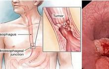Phó giáo sư Nhật: 4 thói quen gây nguy cơ ung thư thực quản, ai mắc cần chú ý kiểm tra