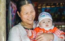 Chuyện về Cún: Em bé Down ở Yên Bái mang nhiều bất hạnh và sự chung tay của cả cộng đồng