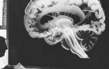 Muốn não phát huy tối đa sức mạnh thì nhất định không được bỏ qua 5 thói quen này