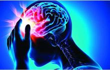 7 triệu chứng đột quỵ ai cũng có thể gặp phải: Nắm chắc để tăng cơ hội sống sót cho chính mình!