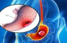 """Chuyên gia khuyến cáo """"thủ phạm"""" có thể gây ung thư dạ dày người Việt hay mắc"""