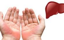 7 biểu hiện ở đôi tay tiết lộ các bệnh mà cơ thể đang mắc, dấu hiệu đầu tiên cảnh báo bạn đang bị bệnh gan đấy