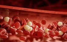 Chuyên gia tim mạch khuyên: Thay đổi 7 thói quen, ngăn chặn được 60% khả năng mắc bệnh