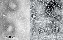 """TQ công bố """"chân dung"""" virus corona: Sự nguy hiểm chết người đằng sau tử thần nhỏ hơn cả bụi siêu mịn"""