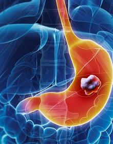 Chuyên gia ung thư hàng đầu tư vấn cách tầm soát và phát hiện ung thư dạ dày sớm: Căn bệnh 80% do yếu tố từ ngoài cơ thể