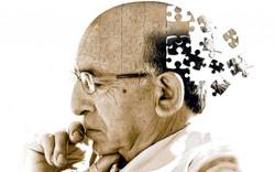 Alzheimer sẽ là cơn ác mộng khi về già, trừ khi bạn thực hiện 5 thói quen ăn uống cực kỳ đơn giản này ngay từ bây giờ