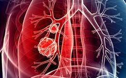 9 bộ phận cơ thể bị hủy hoại bởi thuốc lá