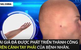 """""""Trồng"""" tai giả thành công trên cánh tay: Các bác sĩ sẽ tiến hành ghép vào đầu bệnh nhân"""
