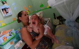 Virus Zika chính là thủ phạm gây teo não