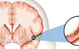 Dùng 4 dấu hiệu sau đây để phát hiện ra người đang đột quỵ: Hãy biết để cứu người!