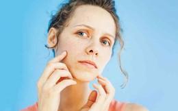 Những dấu hiệu trên gương mặt báo hiệu cơ thể đang thiếu vitamin và các dưỡng chất cần thiết