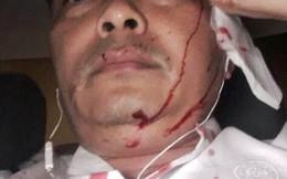 Giám đốc nhân sự cà phê Trung Nguyên bị đánh ở Sài Gòn