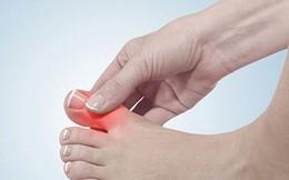 Phương pháp giảm đau nhanh nhất khi ngón chân cái bị sưng tấy