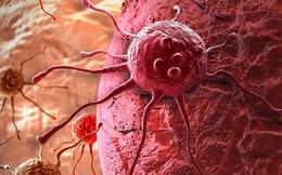 Ai cũng có thể bị ung thư: 3 nguyên tắc và 1 chế độ ăn ngừa ung thư nên làm ngay kẻo muộn