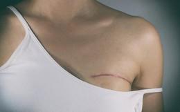 """15 chia sẻ của những phụ nữ đang bị bệnh ung thư vú """"đeo bám"""" giúp chúng ta hiểu hơn về bệnh này"""