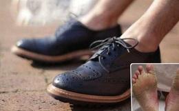 Nhiều người có thói quen đi giày không đi tất mà không biết hậu quả khủng khiếp sẽ xảy ra
