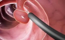 Ung thư đại trực tràng: Có triệu chứng đi khám ngay, phát hiện sớm dễ chữa khỏi