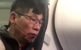 Bác sĩ gốc Việt bị đá khỏi máy bay của United Airlines vẫn nằm viện, thuê hai luật sư để khởi kiện