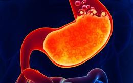 """6 loại """"thực phẩm vàng"""" tốt nhất cho sức khỏe đường ruột"""