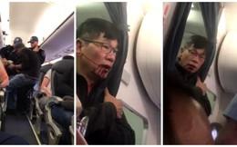 Tổng thống Trump quan tâm, dân Mỹ sục sôi vụ bác sĩ gốc Việt bị lôi khỏi máy bay