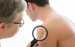 Nắng nóng gay gắt: Cảnh báo 2 dạng ung thư da ngày càng phổ biến bạn có nguy cơ mắc phải