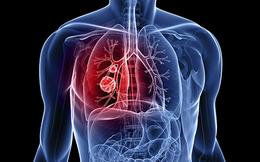 """Dấu hiệu cảnh báo ung thư phổi đang """"sống"""" trong cơ thể: Nhận biết sớm cơ hội sống lên tới 55%"""