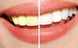 """Chuyên gia nha khoa chỉ ra các nguyên nhân """"không ngờ"""" khiến răng ố vàng và biện pháp tẩy trắng răng hiệu quả"""