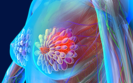 Ngăn ngừa ung thư vú quay trở lại, 7 điều ai cũng cần biết