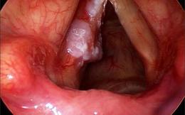 Bác sĩ bệnh viện K Trung ương tư vấn cách phòng và điều trị u thanh quản: Phẫu thuật sớm đến ngăn bệnh tiến triển thành ung thư
