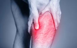 Chuột rút bắp chân: Dấu hiệu cảnh báo nhiều điều về sức khỏe