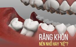 Răng khôn: Mỗi lần mọc lại một lần đau, khi nào nên nhổ?