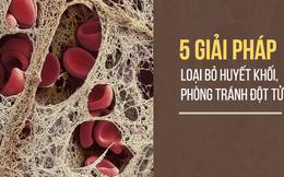 Bệnh tắc mạch máu dễ gây tử vong bất ngờ: 5 giải pháp này sẽ giúp bạn tự cứu mình