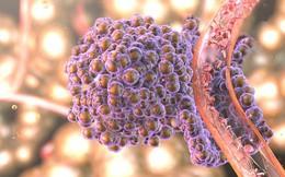 Những yếu tố nguy cơ cao nhất gây ra ung thư: Hãy loại bỏ sớm khỏi cuộc sống của bạn